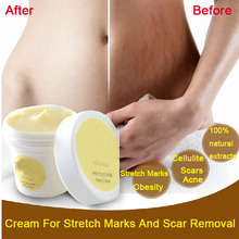 Tailandia pasjel preciosa crema para la piel corporal eliminación de estrías eliminación de cicatrices poderosa obesidad posparto Crema para el embarazo