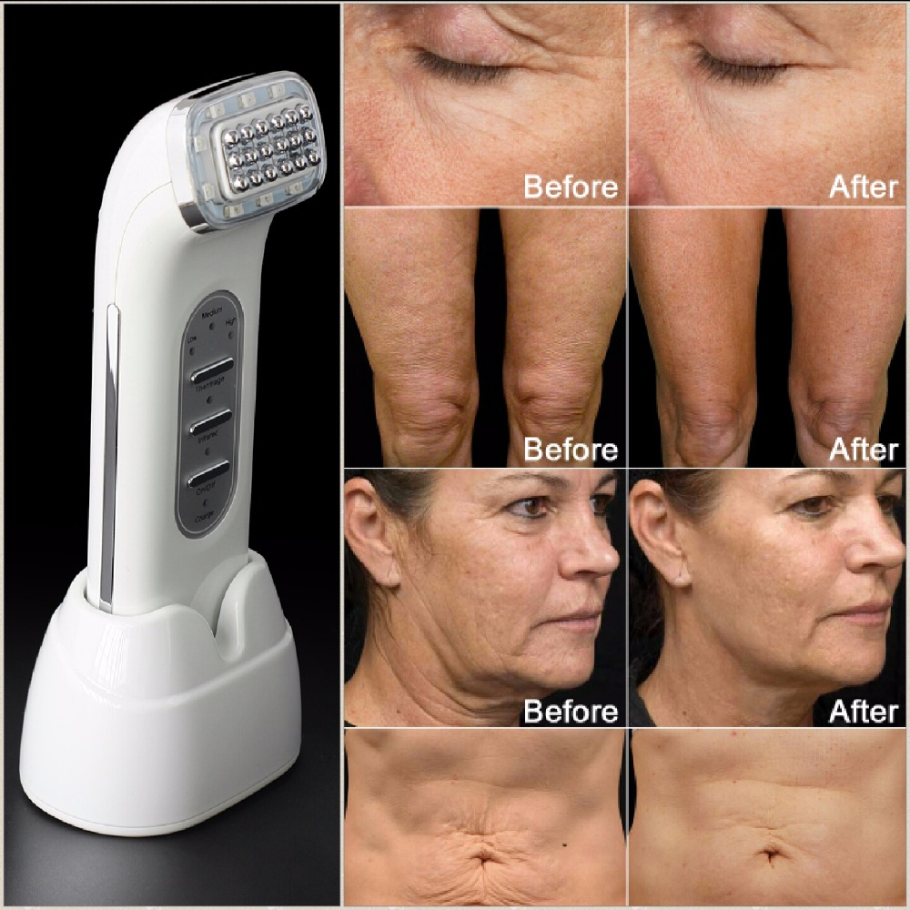Real Remove Wrinkles Dot Matrix Facial Radio Frequency Lifting Face Lift Body SKin Care Beauty Device 110-240V