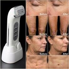 אמיתי להסיר קמטים דוט מטריקס פנים רדיו תדר פנים הרמת מעלית גוף עור טיפול יופי מכשיר 110 240V