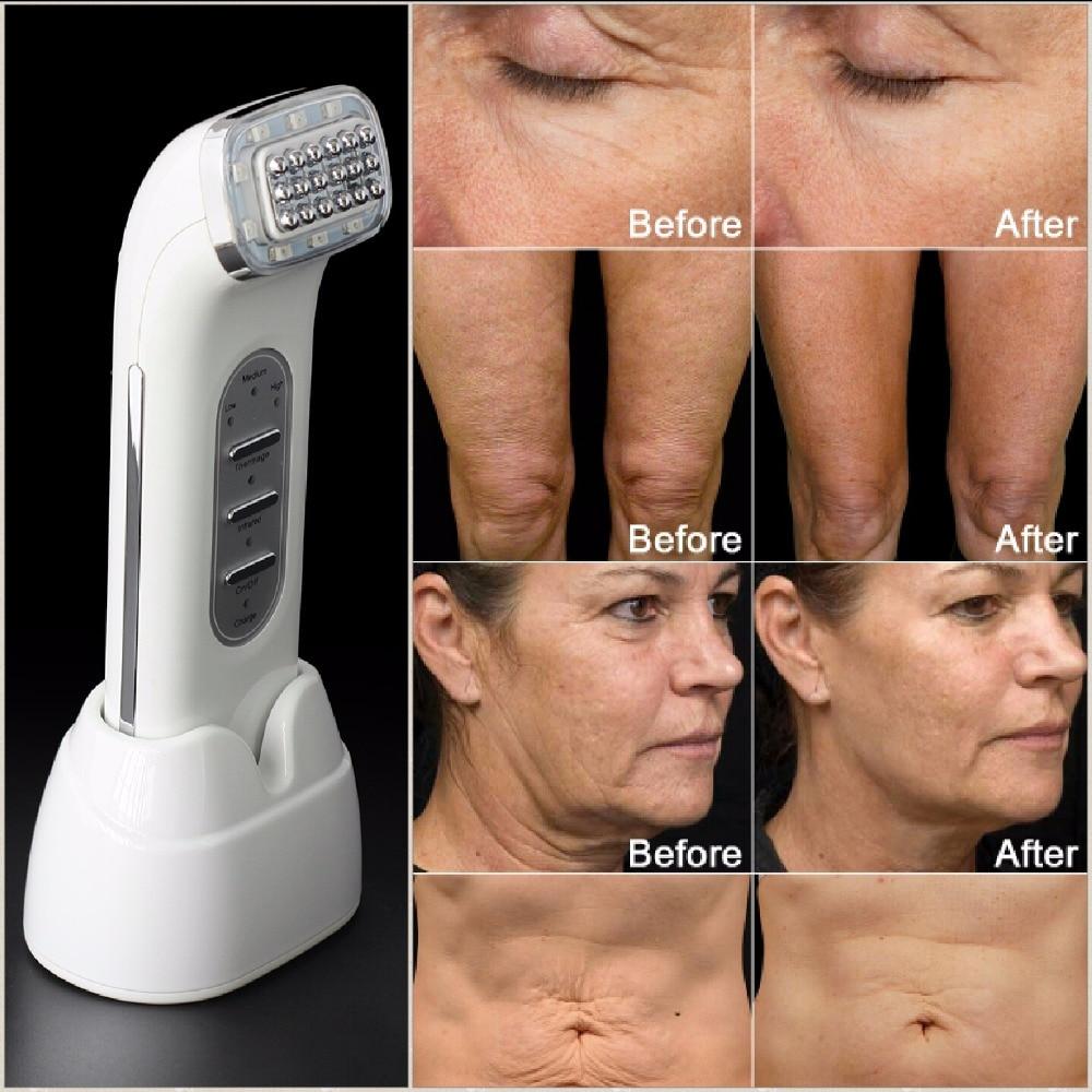 Радиочастотный прибор для лифтинга лица, точечной матрицы, подтяжки и ухода за кожей тела, 110-240 В