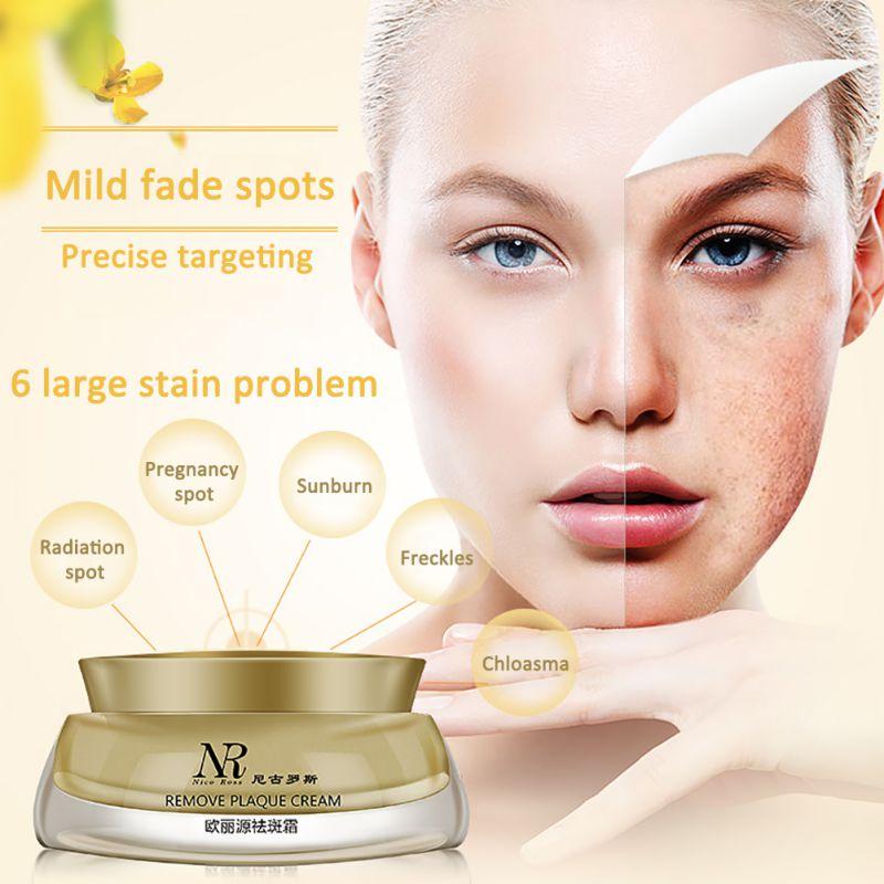 Whitening Cream Entfernen Speckle Peelings Dark Spot Sommersprossen Narben Falten Haut