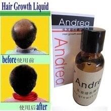Super sale! Andrea Hair Growth anti Hair Loss Liquid 20ml dense hair fast sunburst hair growth grow