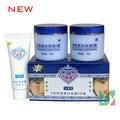 La cara Jiaoli milagrosa Cream ( día y crema de noche ) 20 g + 20 g + 8 g / remove pecas lugar 4 set/lot
