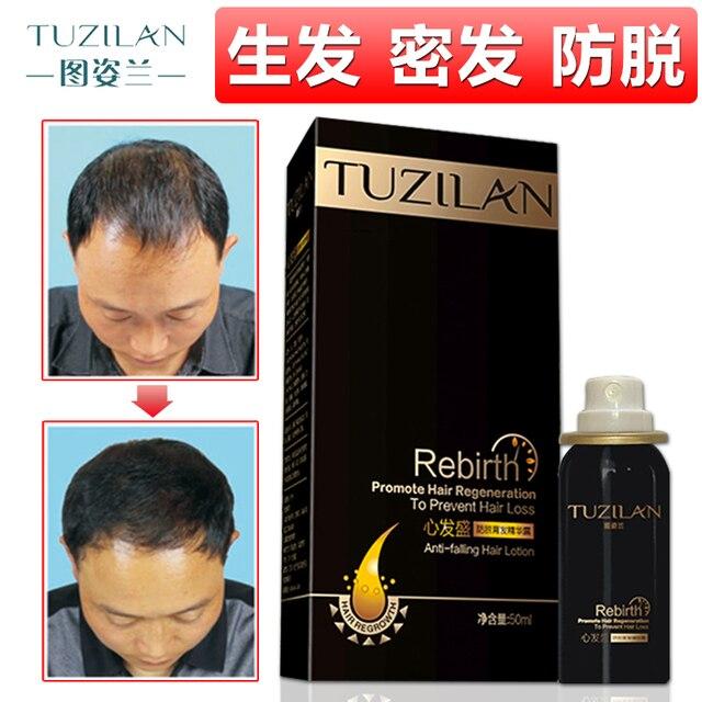 Haarpflege fur haarausfall
