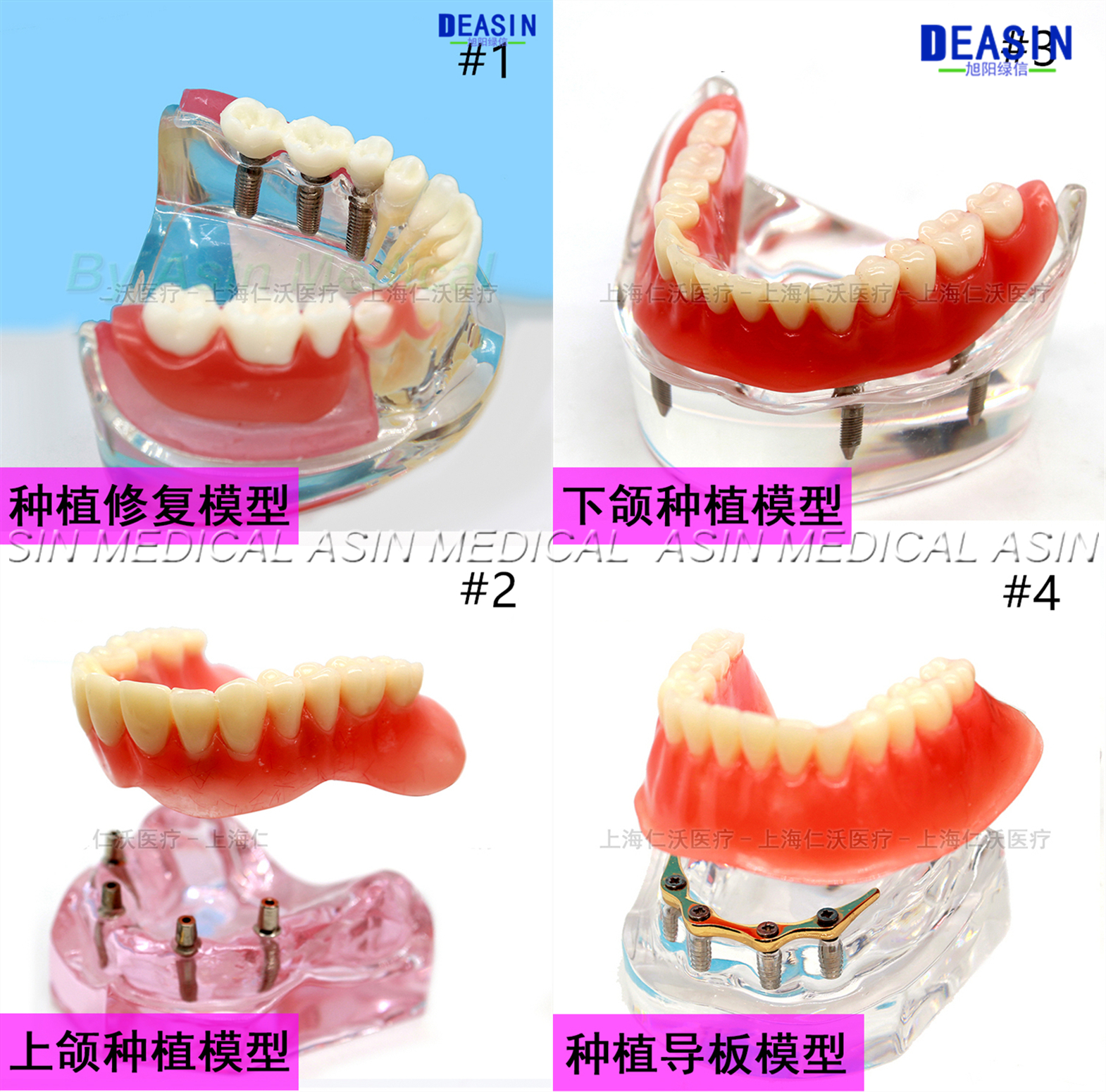 1 Pc X High Quality Resin Coverage Dental Implant Model Dentures Removable Teeth Model For Dentist Study Deasin