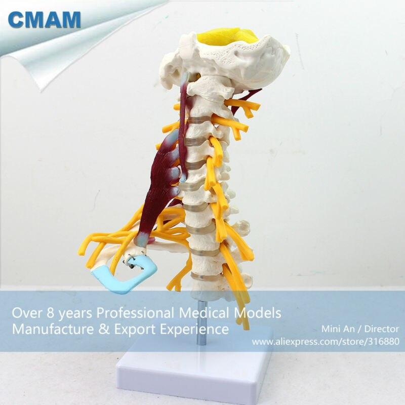 CMAM-VERTEBRA02 Luxury Life-size Cervical Muscle and Nerve Model,Spine/Vertebrae Models > Cervical Vertebra rajat sareen shiv kumar sareen and ruchika jaswal non carious cervical lesions