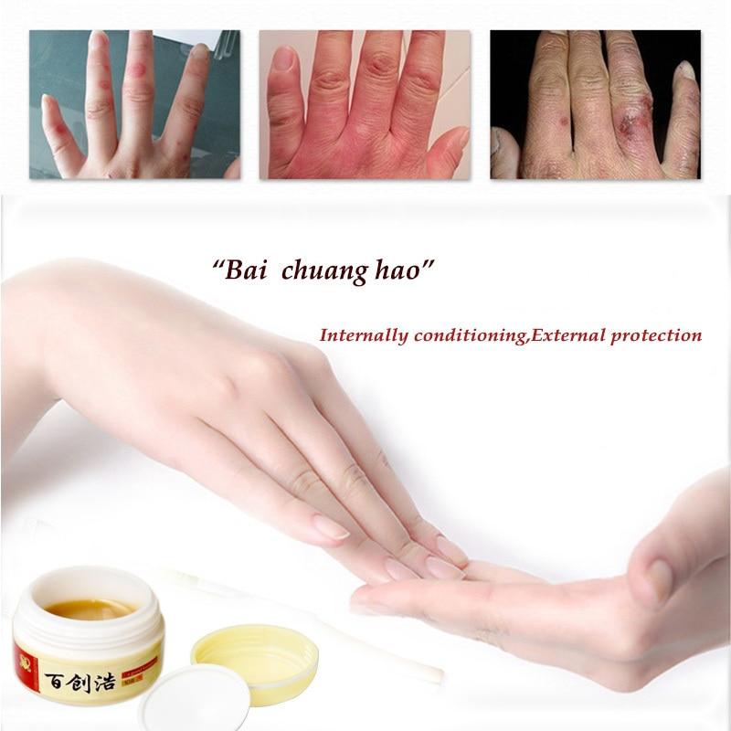 Frostbite cream snake oil hand cream anti-itch cream frostbite frostbite swollen hands and feet