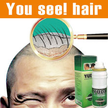 3 bottles original Yuda pilatory extra strength Sunburst alopecia hair growth Hair treatment stop hair loss products hair growth