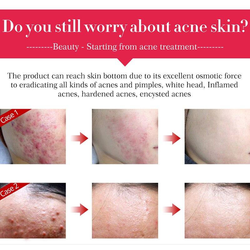 ALI shop ...  ... 32826710167 ... 3 ... Tea Tree Acne Facial Cream Treatment Anti-Acne Shrink Pores Face Cream Collagen Whitening Hyaluronic acid Moisturizing Skin Care ...