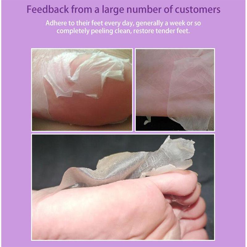 2 Pair Exfoliating Lavender Foot Mask Magic Dead Skin Peeling Socks Moisturizing Skin Care 1
