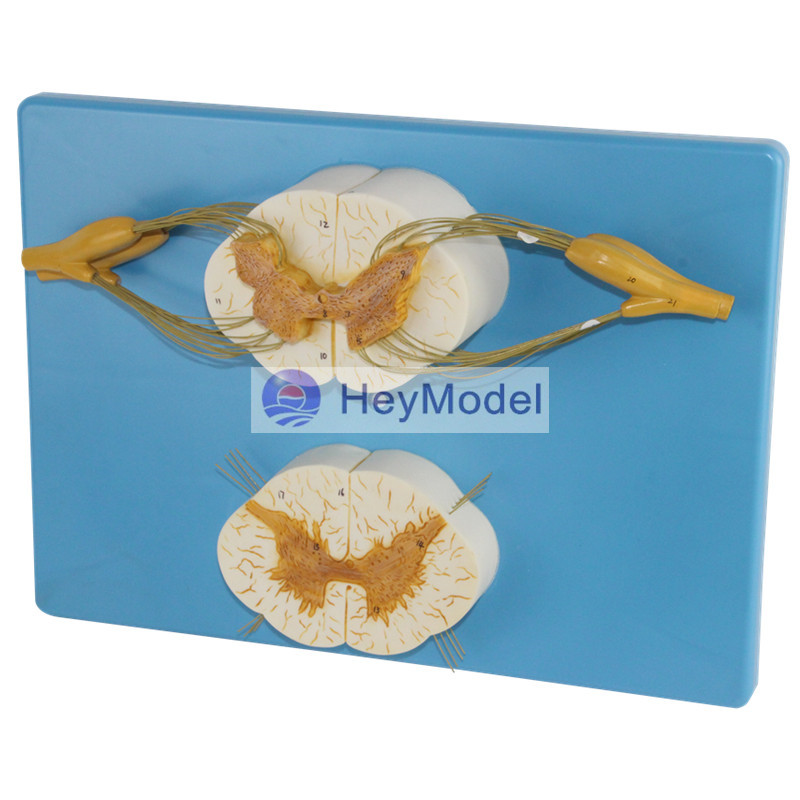 HeyModelSpinal cord and spinal nerve branch amplification model hot spinal cord with nerve branches model spinal cord and spinal nerve branch model