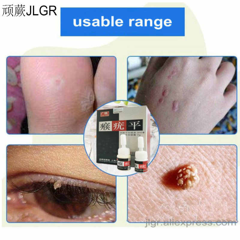 Skin Care Removing Wart Corns Wart Removal Beauty Care Corn Remover Warts Thorn Plaster Patch Feet Callus Removal Tool Skin Tag Aliexpress
