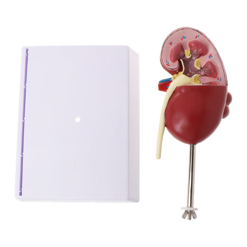 Life Size Human Kidney Diseased Model Anatomical Anatomy Diseased Pathological Stone Organ Teaching Supplies