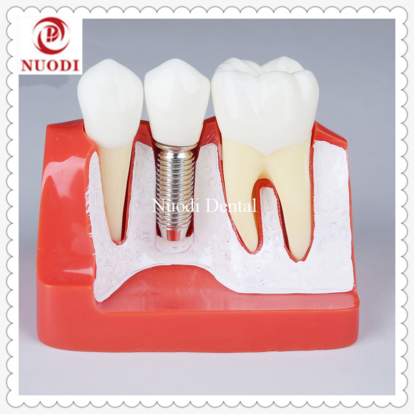 Dental Implant teeth model/4 times Fixture Teeth model Removable bridge/Dental Implant teeth model with abutment soarday 1 piece 2 times dental pathological model implant bridge crown treatment oral teaching model