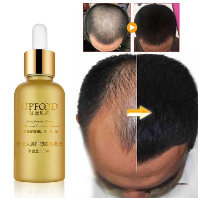 Hair Care Growth Essential Oils Essence Original Authentic 100% Anti Hair Loss Liquid Heal