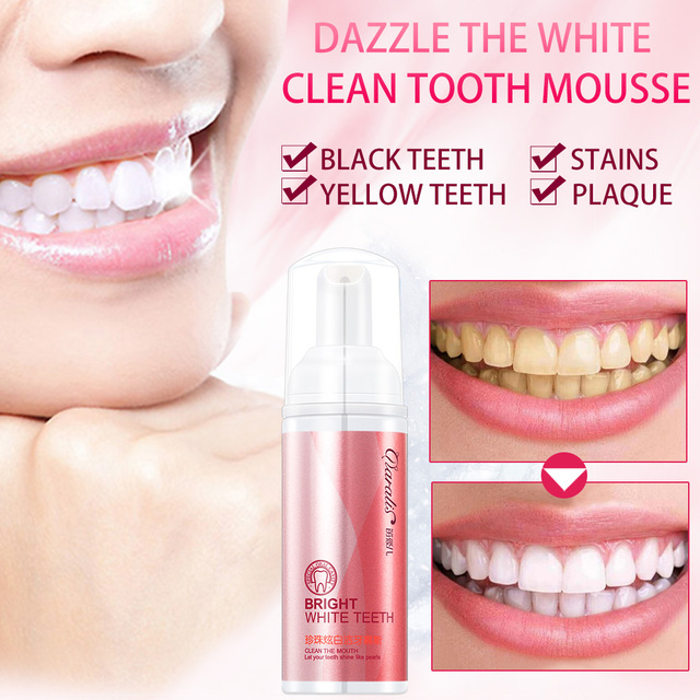 Bad Breath Treatment >> Daralis Deare Dazzle White Teeth Dry Mouth Spray Oral Moisturizer