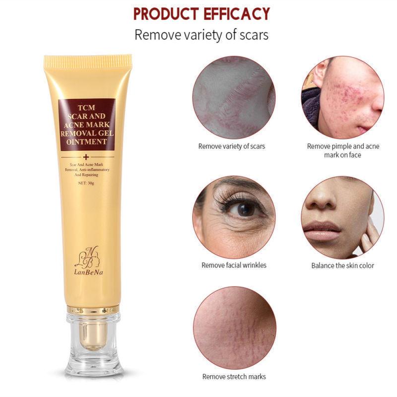 Skin-Care-Cream Mark-Removal Facial-Skin Ointment Scar-Repair Maternity-Postpartum Gel-Body
