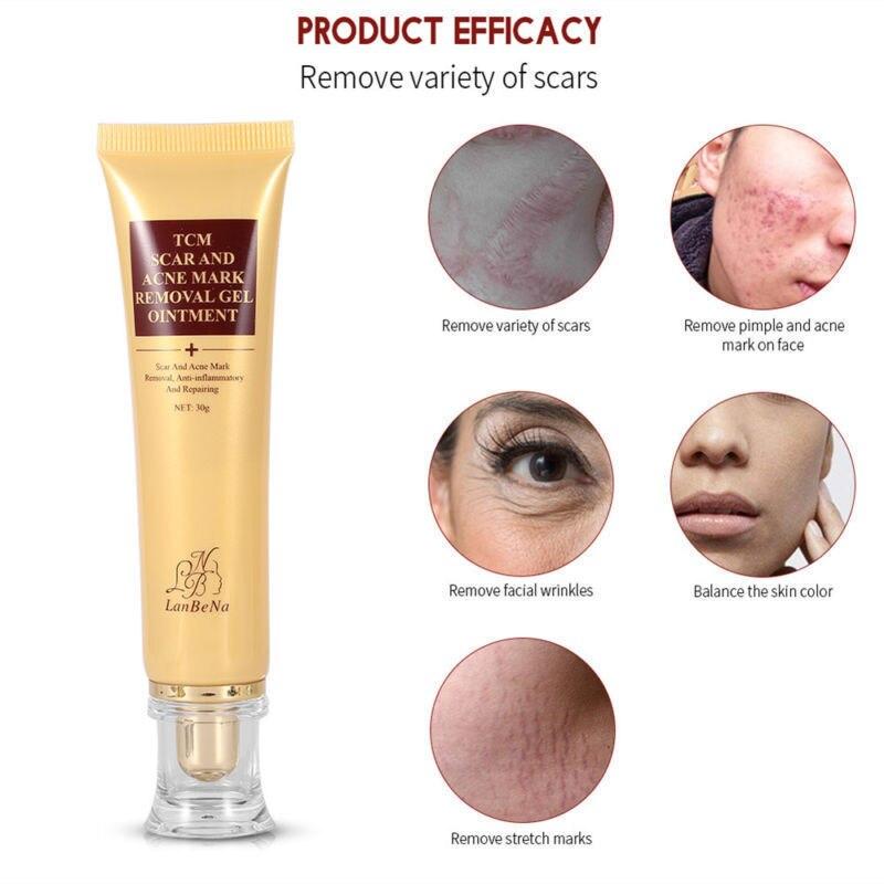 1Pc 30g Facial Skin Scar Acne Mark Removal Gel Body Ointment Acne Maternity Postpartum Scar Repair Skin Care Cream TSLM2