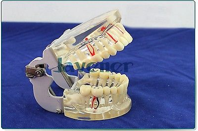 Dental Disease Tooth Teaching Model Pathology Periodontal Diseases Dental Caries dental teaching model caries model of child gum can be removed
