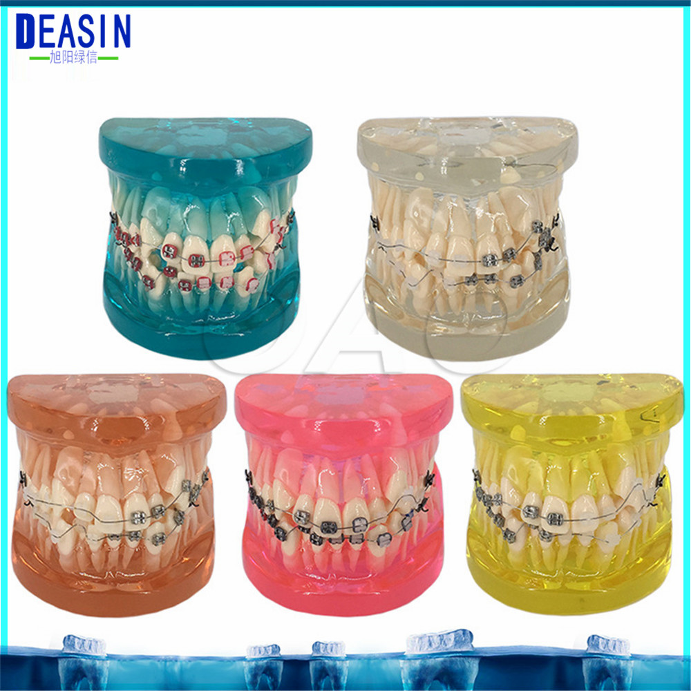 Teeth removable Dental implant Demonstration Bracket Simulation Caries Teeth Model Dentist Dental Study Teach Tooth Model dental prosthesis teeth model with metal ceramic bracket brace dentist model denture teaching study model technician tools