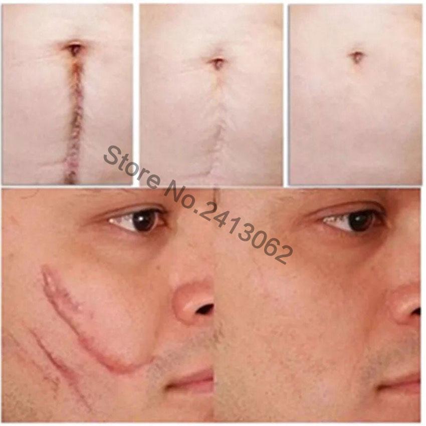 Natural Authentic Anti Acne Spots Face Anti Care Acne Treatment
