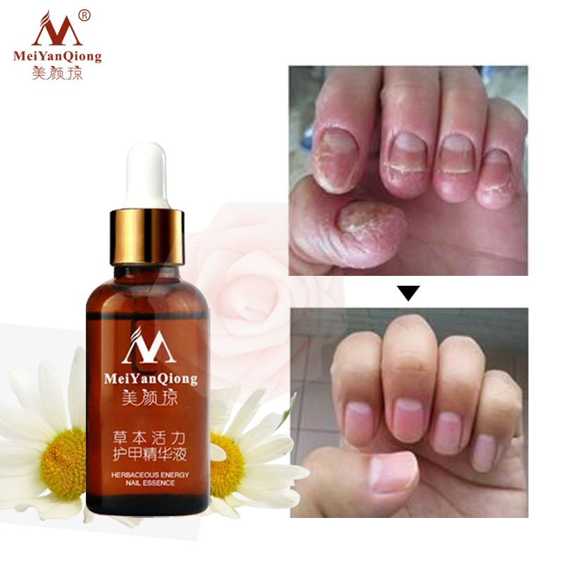 3pcs/lot Fungal Nail Treatment Repair Essence Nail and Foot Hand ...