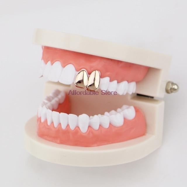 Professional Adult Dental Tooth Orthodontics Gold Color Teeth Braces Single Tooth Orthodontic Dental Care Tool