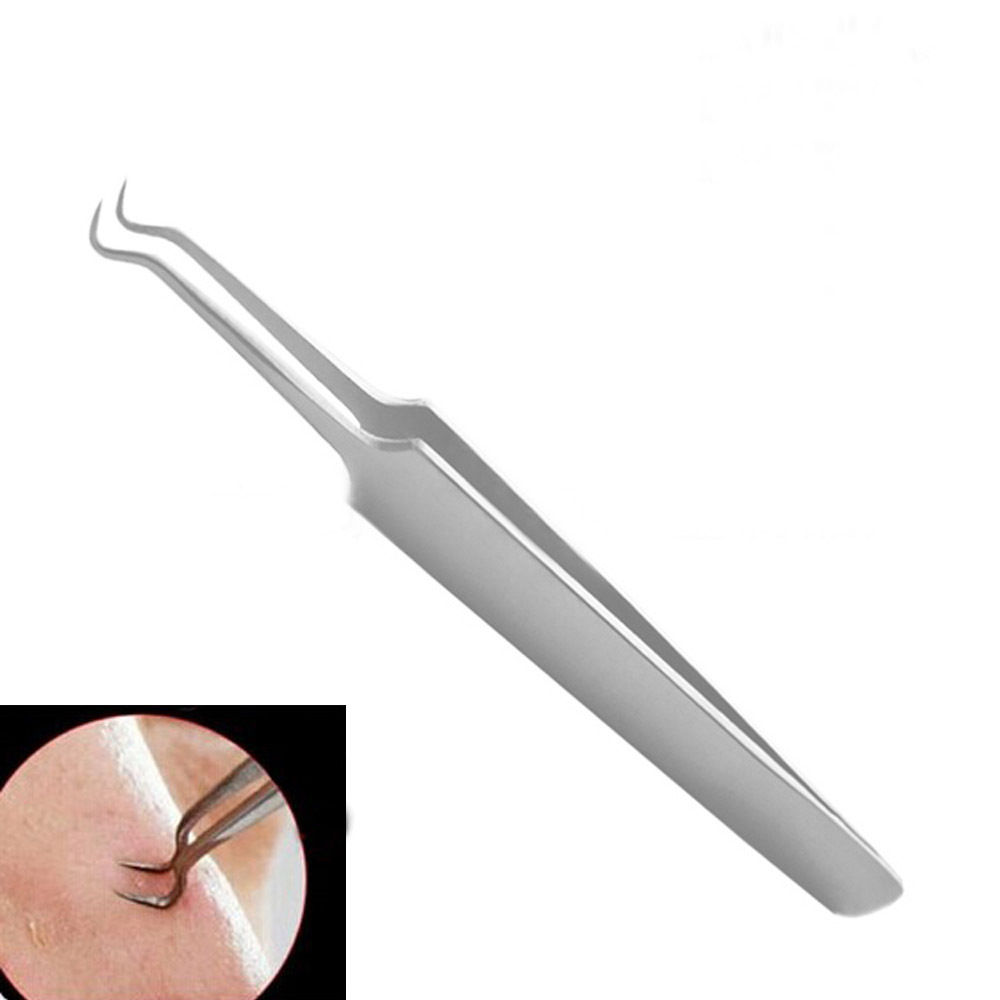 1PC Bend Curved Whitehead Blackhead Acne Clips Pimple Comedone Remover Face Cleaner Tool