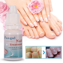 10ML 1PC Fungal Nail Treatment Essence Nail Foot Whitening T