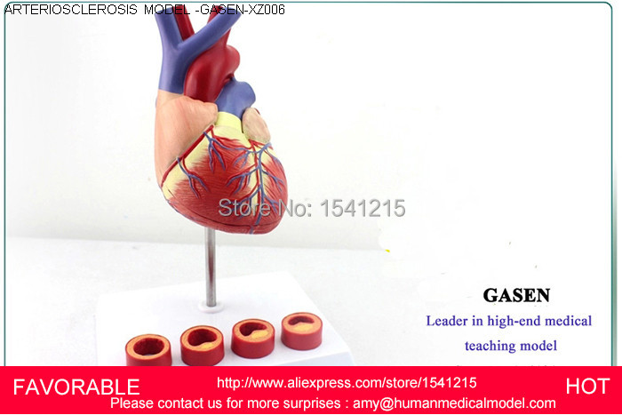 HUMAN ANATOMICAL HEART,ANATOMY VISCERA MEDICAL ORGAN MODEL EMULATIONAL ,HUMAN HEART ARTERIOSCLEROSIS MODEL -GASEN-XZ006 human anatomical male body integral skeleton organ skin medical teach model school hospital