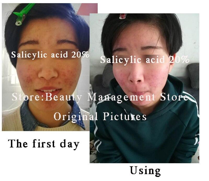 20% peeling com ácido salicílico ácido creme