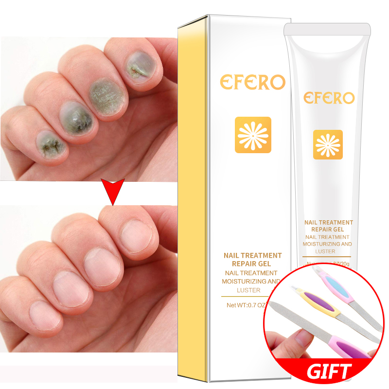 Keep Nail Polish Off Cuticles: 2PCS Nail Nutrition Oil Nail Treatment Cuticle Revitalizer