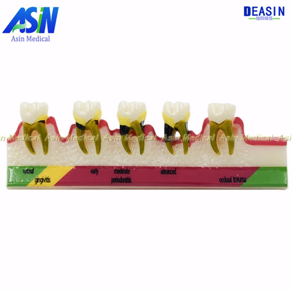 New arrival Classification of periodontal diseases teeth model Dental patient communication model process of periodontal disease resin oral periodontal disease classification model gingivitis degree chronic periodontitis model