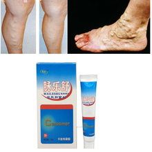 1Pcs Varicose Veins Ointment Vasculitis Treatment Phlebitis Angiitis Inflammation Blood vessel Rotten legs Patch D083 цена 2017