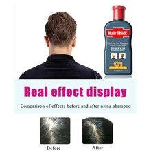 Anti-Hair Loss Shampoo Original Dexe Anti Hair Loss Hair Thick Fast Growth Herbal Liquid For Women Men