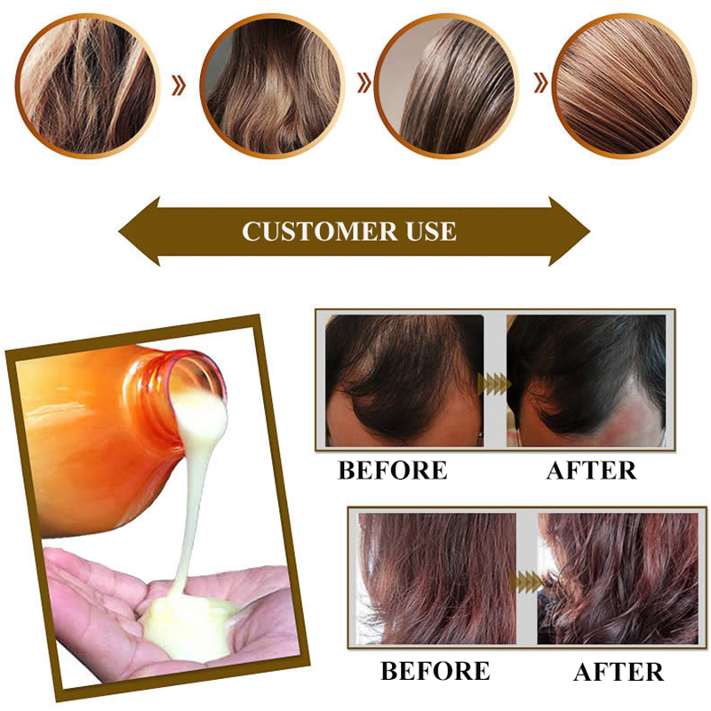 1 Set Professional Ginger Shampoo And Conditioner Anti Loss Repair