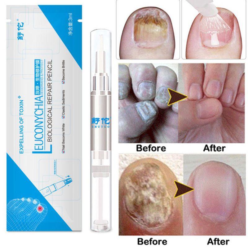 3ml Fungal Nail Pen Effective Onychomycosis Paronychia Fungus Infection Repair Solution Gel Toenail Treatment Nutrient Essence