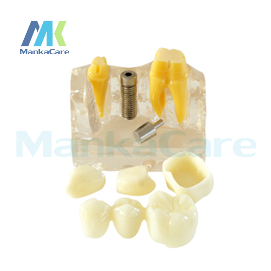 Manka Care -  4Times Implant Model/Made of high quality resin Oral Model Teeth Tooth Model manka care teeth preparation made of imported resin can be used for both operative dentistry and prosthodontics