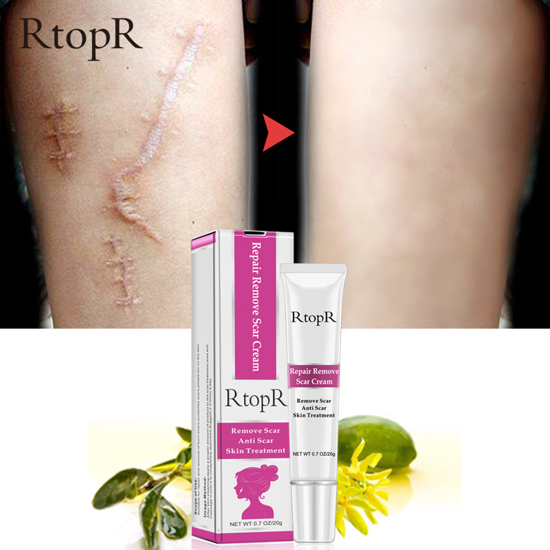 RTOPR Acne Scar Stretch Marks Remover Cream Skin Repair Face Cream Acne Spots Acne Treatment Blackhead Whitening Cream 20g