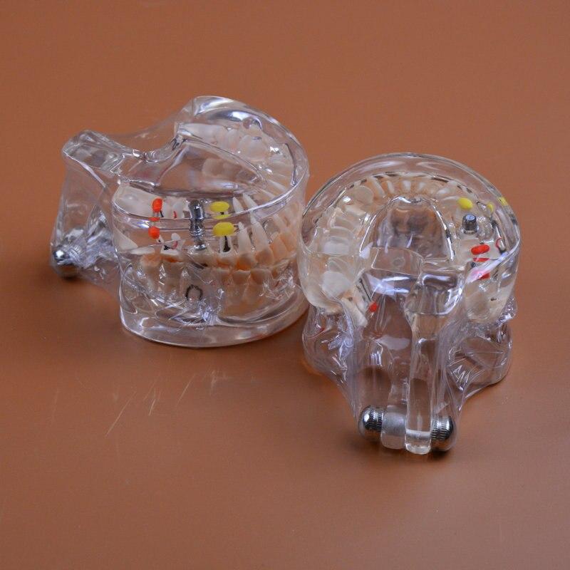 odontologia modelo de patologia dental com implante