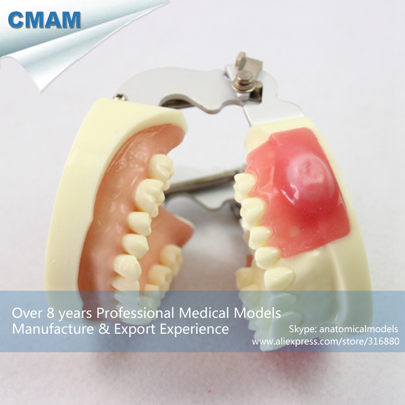 CMAM-DENTAL23 Upper Jaw Incision Pus Removal Model,  Medical Science Educational Teaching Anatomical Models cmam implant04 implant jaw model medical science educational teaching anatomical models