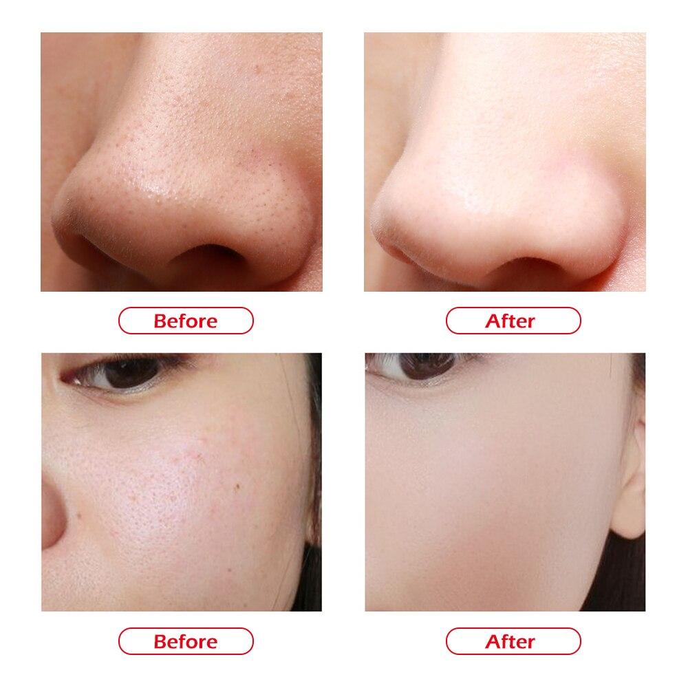 Gesicht Mitesser Entferner Akne Schwarz Dot Pickel Vakuum Pickel Entfernung Narbe Akne Poren Peeling Hebe Hautpflege Werkzeuge Schönheit Maschine