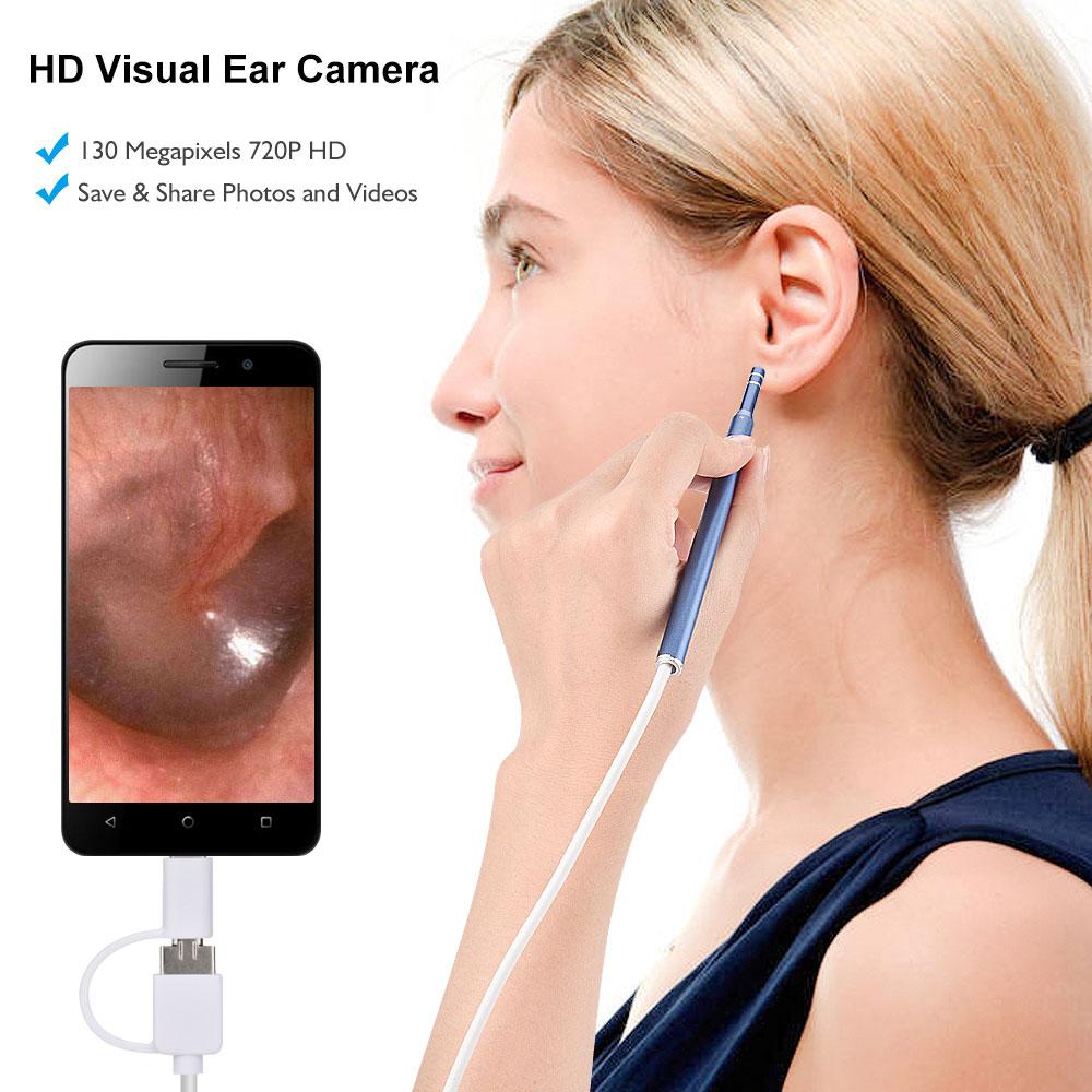 1.3MP HD Visual Ear Camera (2)