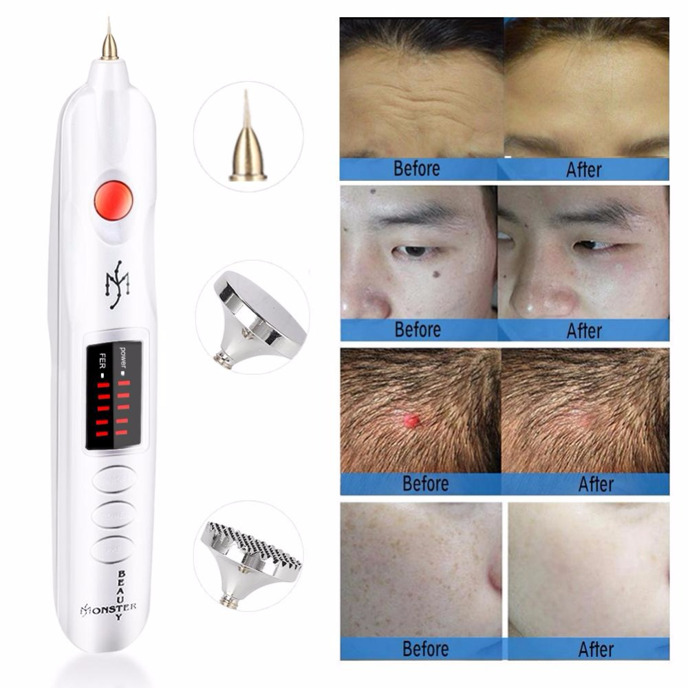 Professional Freckle Wrinkle Mole Remover Pen Wart Spot Tattoo Scars Removal Machine Ionic Facial Double Eyelids