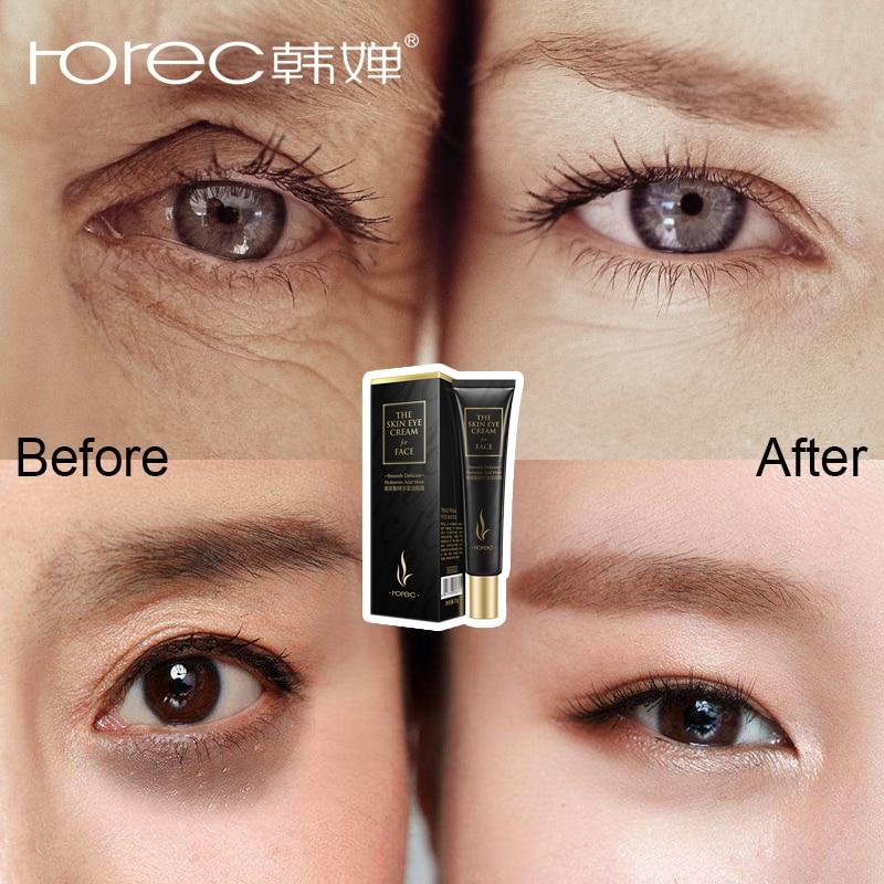 ROREC Hyaluronic Acid Eye Serum Anti-Wrinkle Snail Remover Dark Circles Eye Cream Against Puffiness Anti Aging Ageless Instantly
