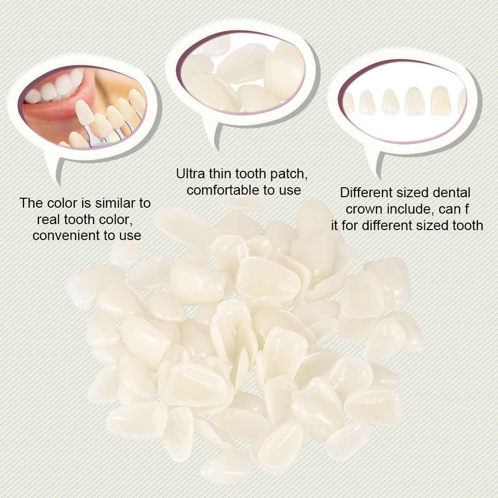 70Pcs ทันตกรรม Ultra-บางฟัน Patch ฟันกรามชั่วคราวเรซิ่นวัสดุ Porcelain ฟันมงกุฎ Veneers Provisionals