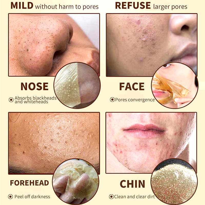 Aichun Golden Peel Mask Gold Powder Particles Blackhead Remover Shrink Pores Anti Acne Fade Freckle Facial Cleansing Mask Care
