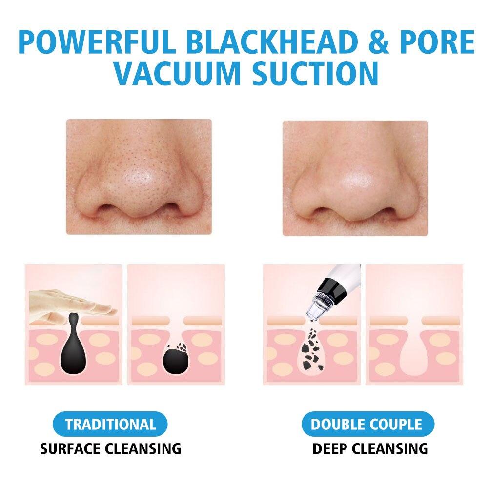 rosto limpo poro vácuo acne espinha remoção