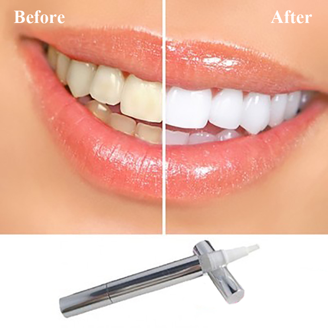Effective Teeth Whitening Gel Pen