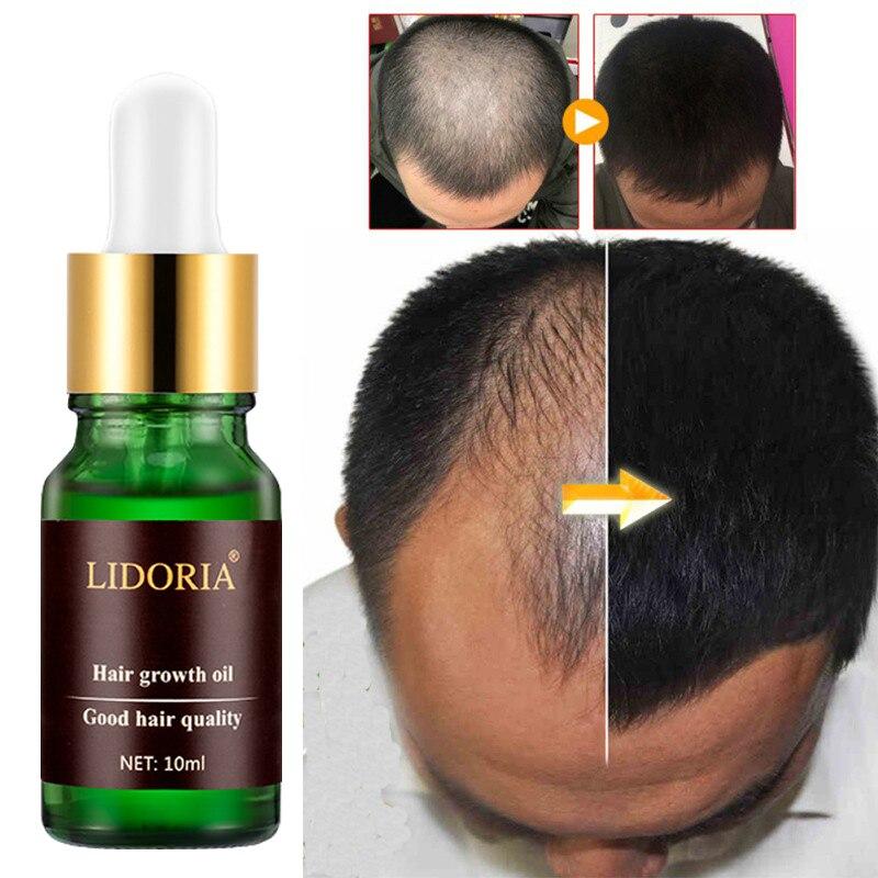 lek na porost włosów korea